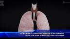 Възможни са тежки последици за белия дроб, дори при хора, изкарали COVID-19 на крак